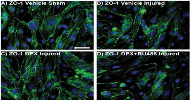 This image shows increased tight junction immunostaining 1 day after blast injury due to dexamethasone (DEX) treatment.