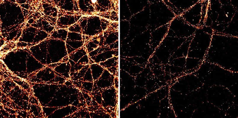 This shows mouse hippocampal neurons.