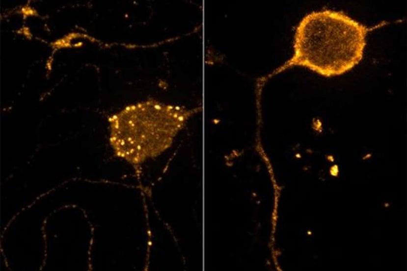 This image shows an mu-opiod receptor.