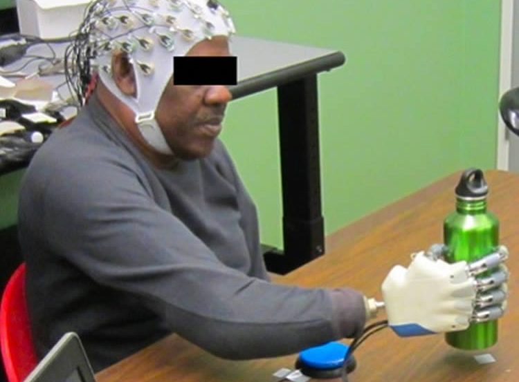 This shows a person using the technology to control a prosthetic hand.