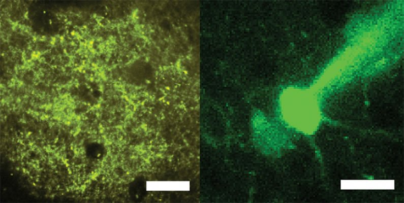 This shows neurons with markers that enable optical stimulation (left) and recording (right).