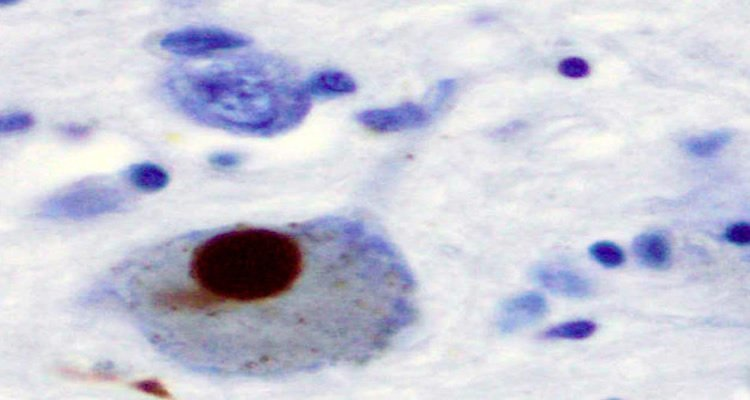 This shows immunohistochemistry for alpha-synuclein showing positive staining (brown) of an intraneural Lewy-body in the Substantia nigra in Parkinson's disease.