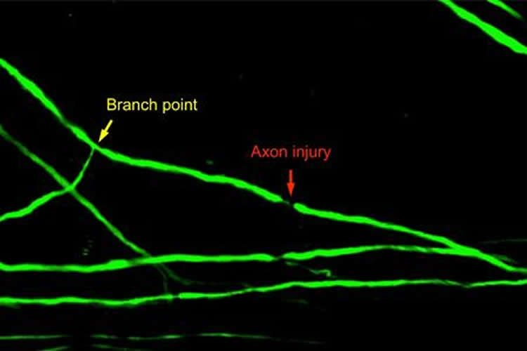 This shows injury to a spinal cord axon after a major branch point.