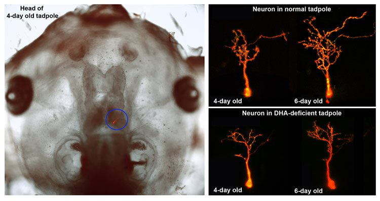 This shows a tadpole head and neurons.