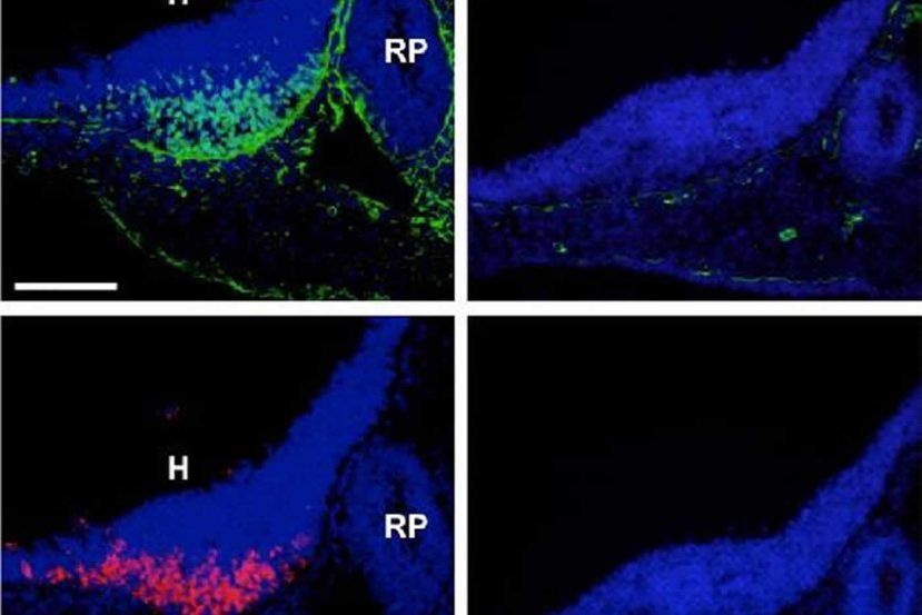 This shows normal hypothalamus POMC cells from a developing mouse.