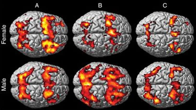 This image shows the male and female brain scans.