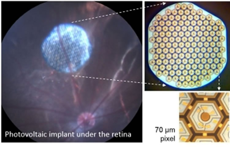 This image shows the retinal implants.
