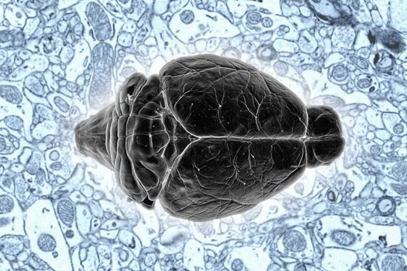 This image shows a mouse brain.