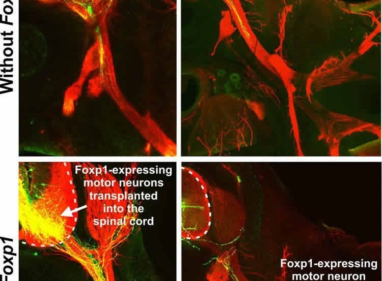 This shows neurons with and without Foxp1.
