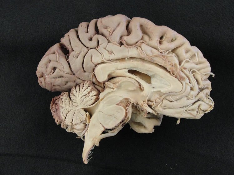 This shows brain cut in half.