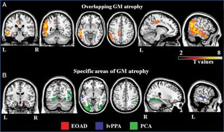 This image shows MRI scans from the research paper.