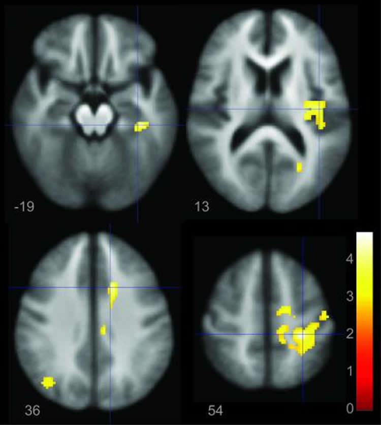 This shows the a brain scan from the study.