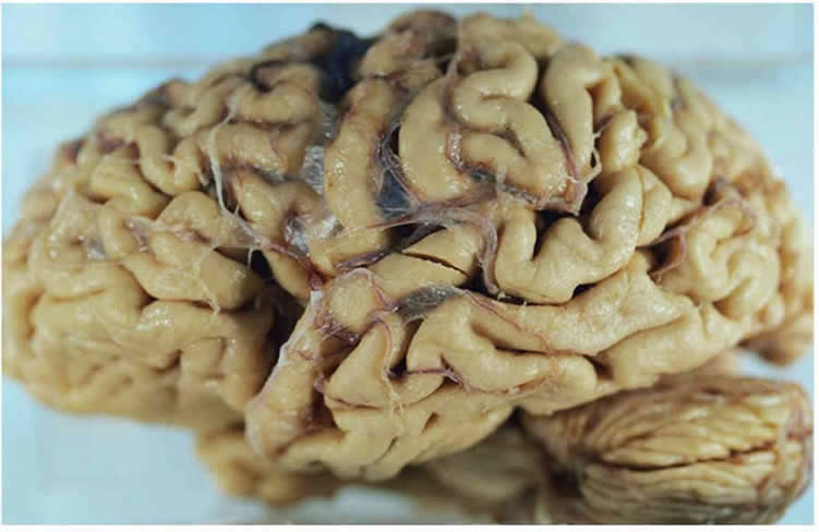 This image shows a brain affected by Alzheimer's.