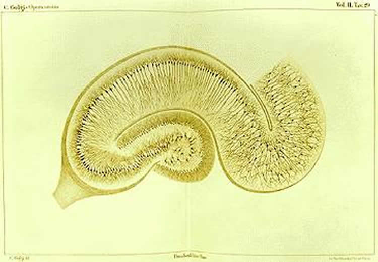 This image is Camillo Golgi's drawing of a hippocampus stained using the silver nitrate method.