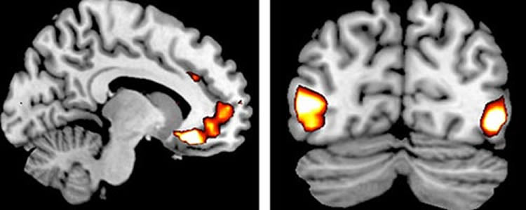 This image shows MRI brain scans with the areas of increased activity highlighted.