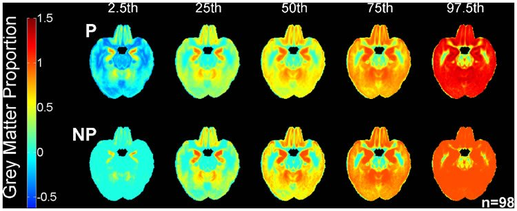 This image shows different brain atlases recorded for the study.