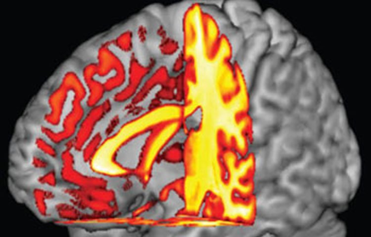 This image shows a brain scan.