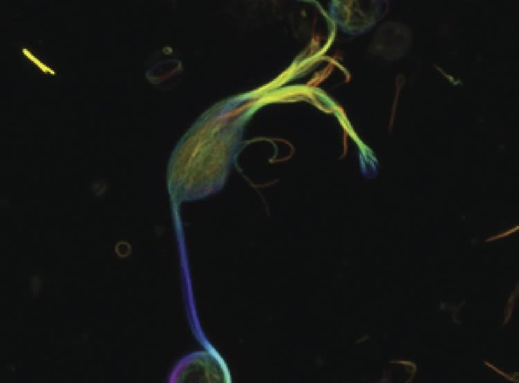 This image shows fluorescently labeled microtubules.