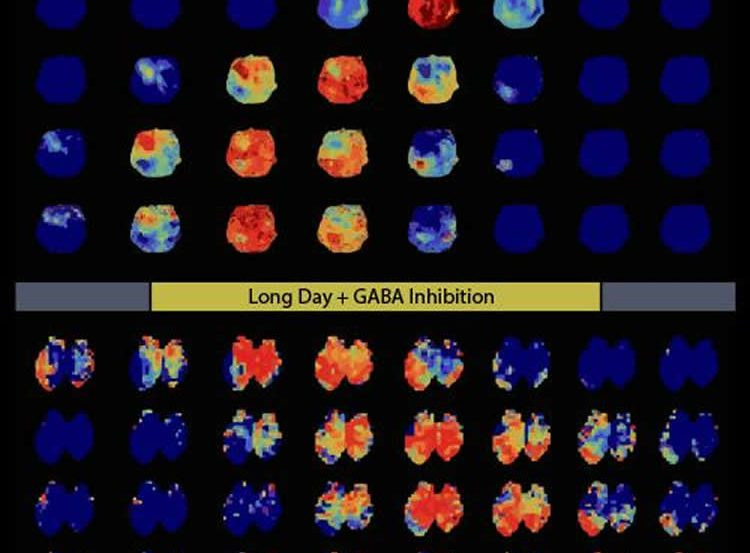 This image shows scans of brains expressing different levels of Bmal1.
