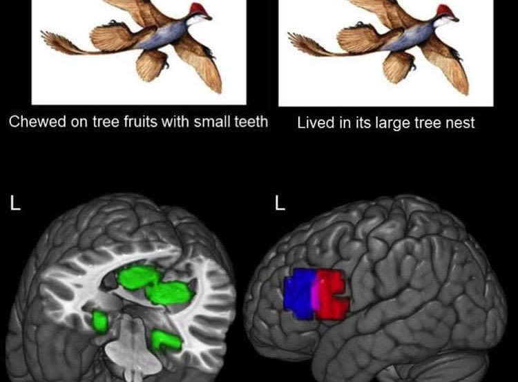 Image shows brain scans attributed to the study.