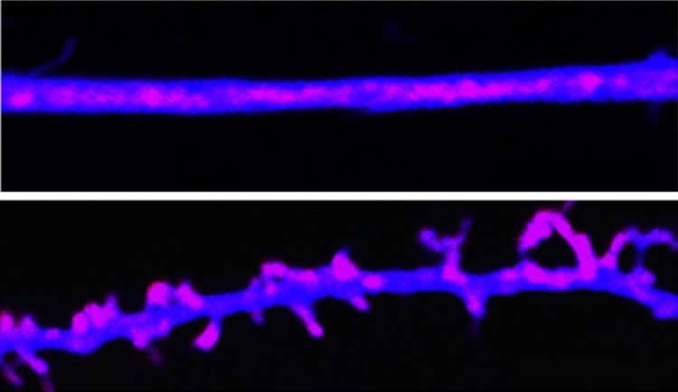 This image shows a CPEB prion.