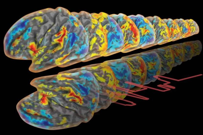 This image shows a number of colored brain scans.