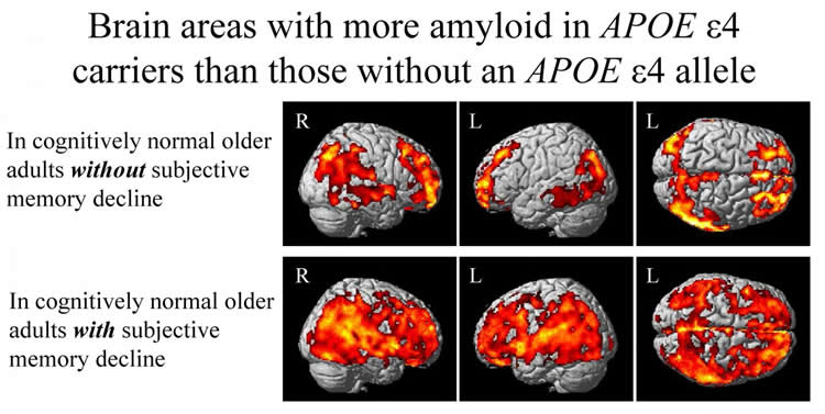 This image shows brain scans used for the study.