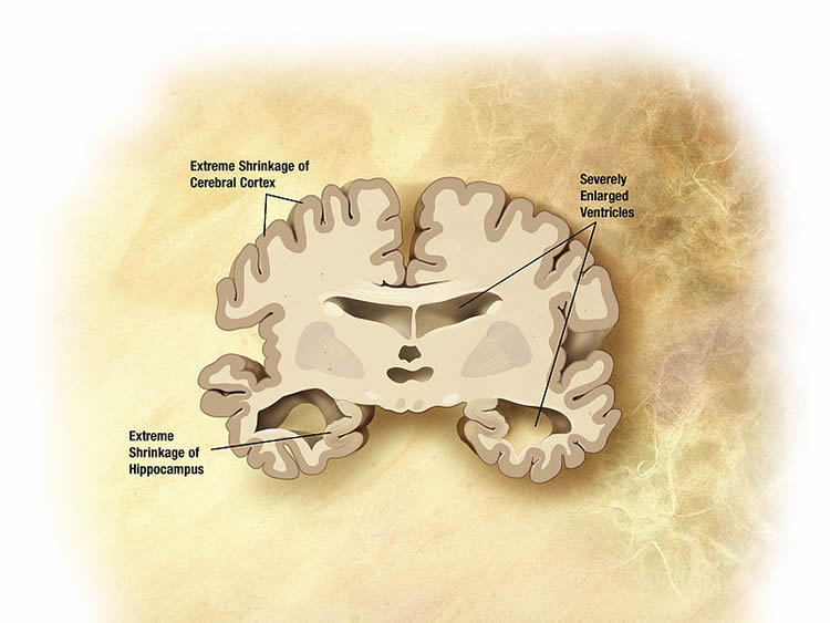 This image shows a drawing of a brain slice from a person with Alzheimer's.