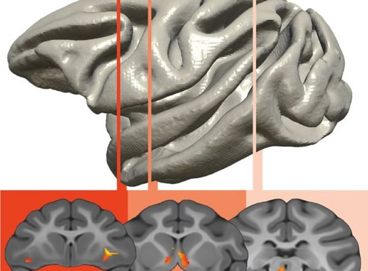 This image shows a prefrontal-limbic-midbrain circuit is responsible for the genetic transfer of an anxious temperament.