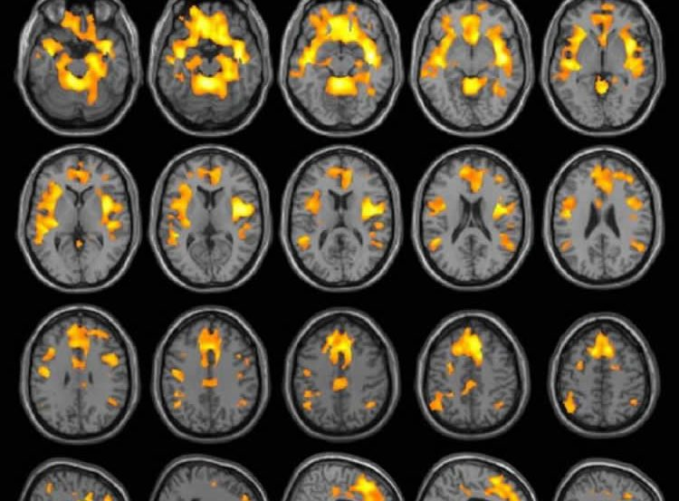 This image shows MRI scans of both the brains of women who abused substances and those who did not.