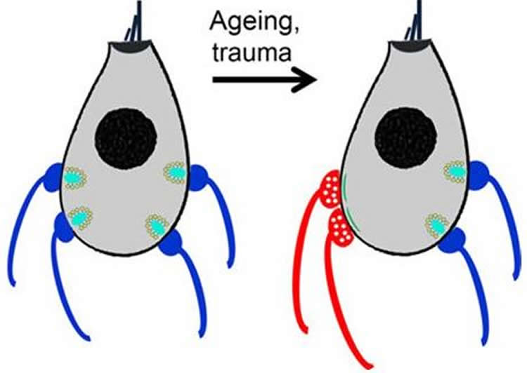 This drawing shows mature hair cells, left, lose connections to outgoing neurons (blue) and gain connections to incoming neurons (red) as they age, right.