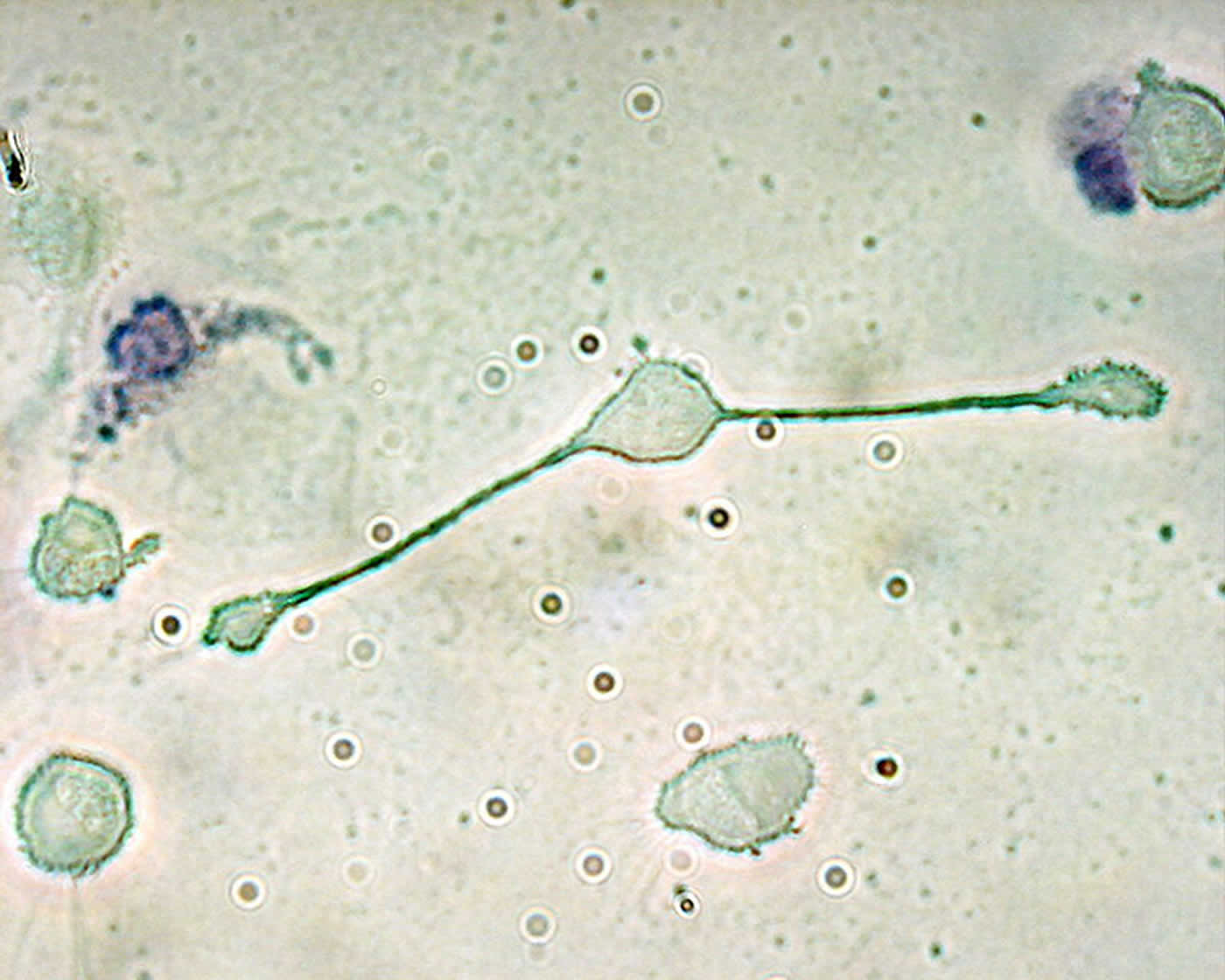 This image shows a macrophage extending its 'arms' to engulf two particles.