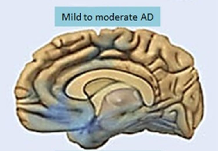 This image shows a drawing of a brain with mild Alzheimer's disease.