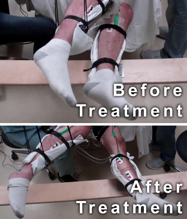 This image shows the range of voluntary movement prior to receiving stimulation compared to movement after receiving stimulation, physical conditioning, and buspirone.