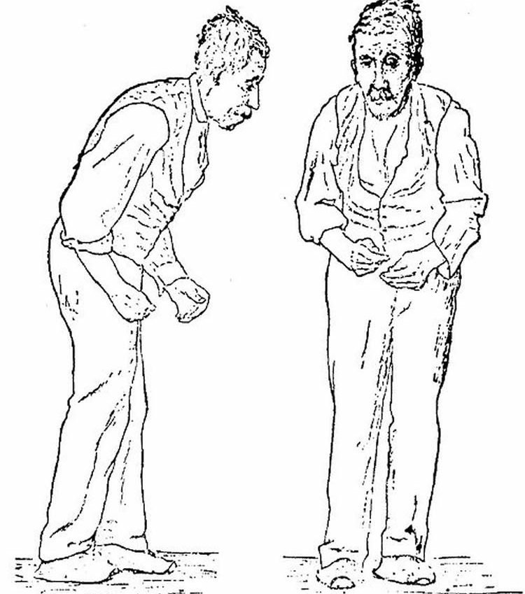 This image is a drawing of a man with Parkinson's disease.