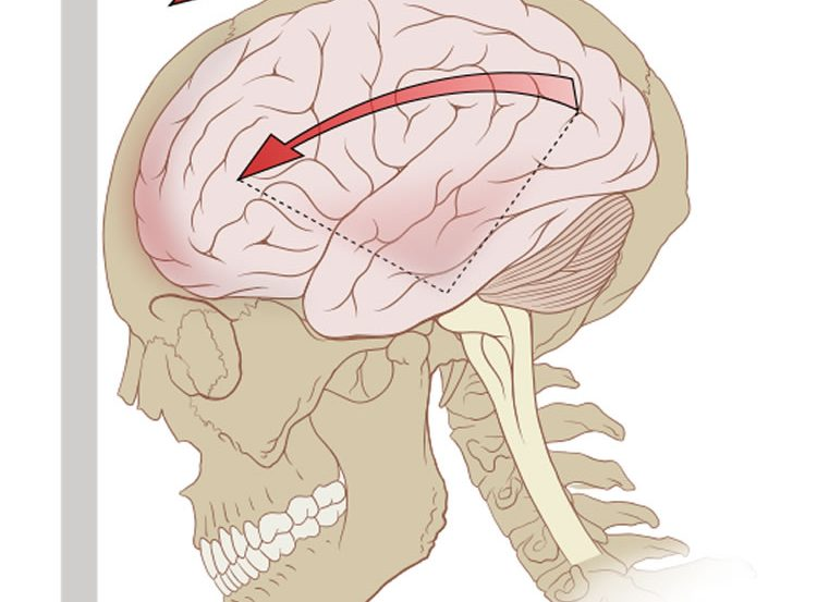 This is a drawing of a skull and brain. There is an arrow above the skull pointing to a wall, as if to signify force.