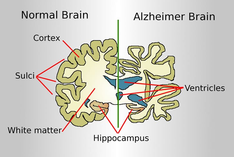 This shows a diagram of a normal brain slice and one affected by Alzheimer's disease.