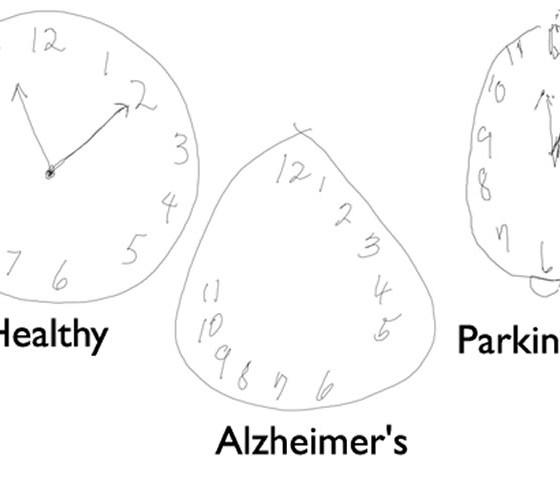 detecting alzheimer u0026 39 s disease by drawing a clock face with