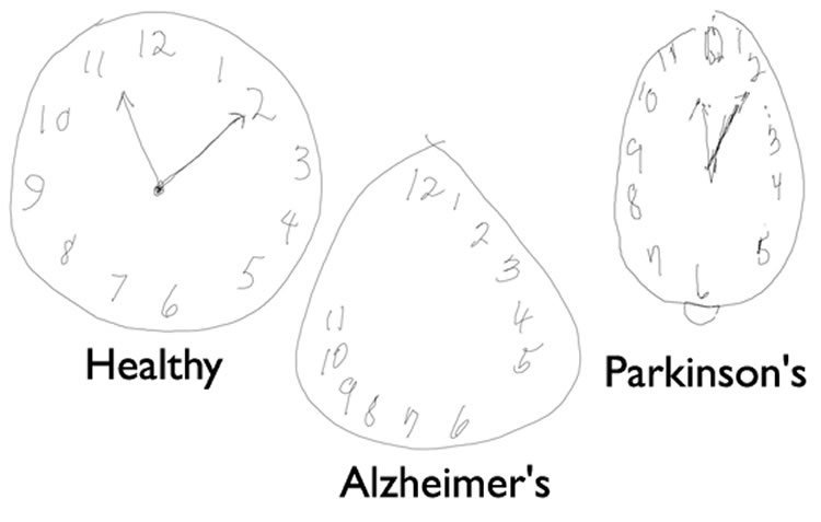 demenz alzheimer test
