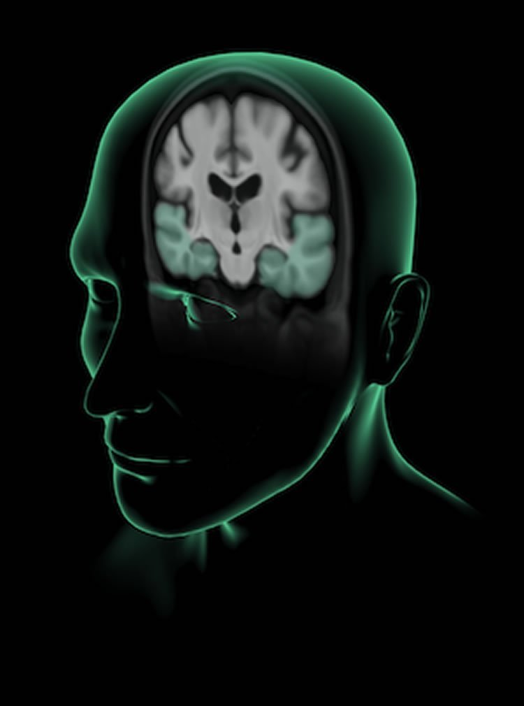 This shows the outline of a man's head with a cut away exposing the brain.