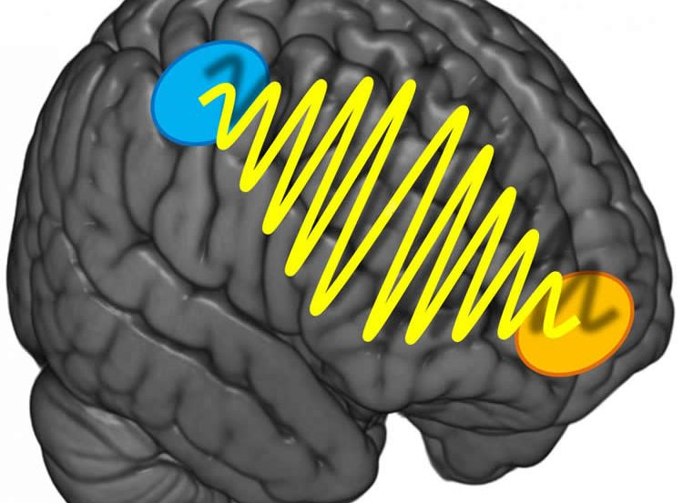This image shows a brain with squiggles to represent brain waves.