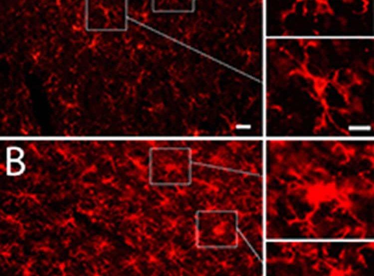 This image shows damaged and undamaged microglia.