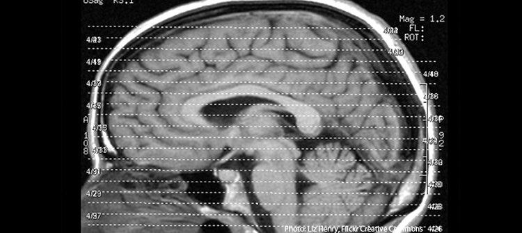 This shows a brain scan.