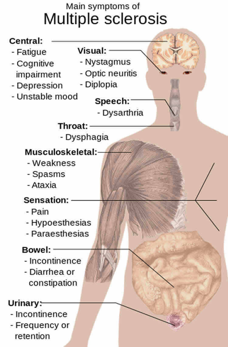 This is a diagram showing how MS affects the body.