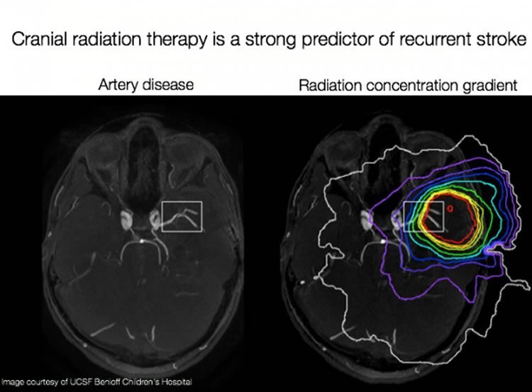 This shows two brain scans of brains affected by strokes.