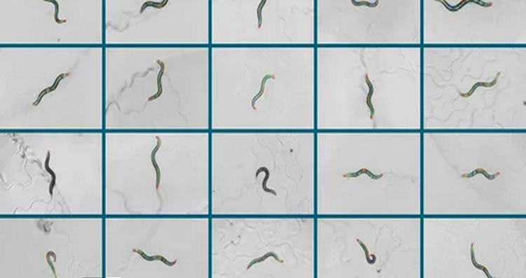This shows nematode worms in different positions.