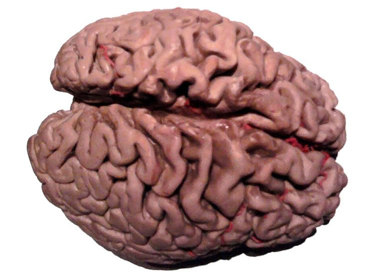 This shows a plastinated alzheimer's brain.
