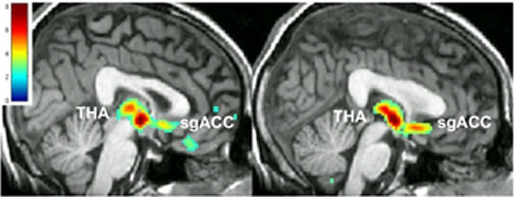 Image shows brain scans showing how both placebos and antidepressants affect the brain.