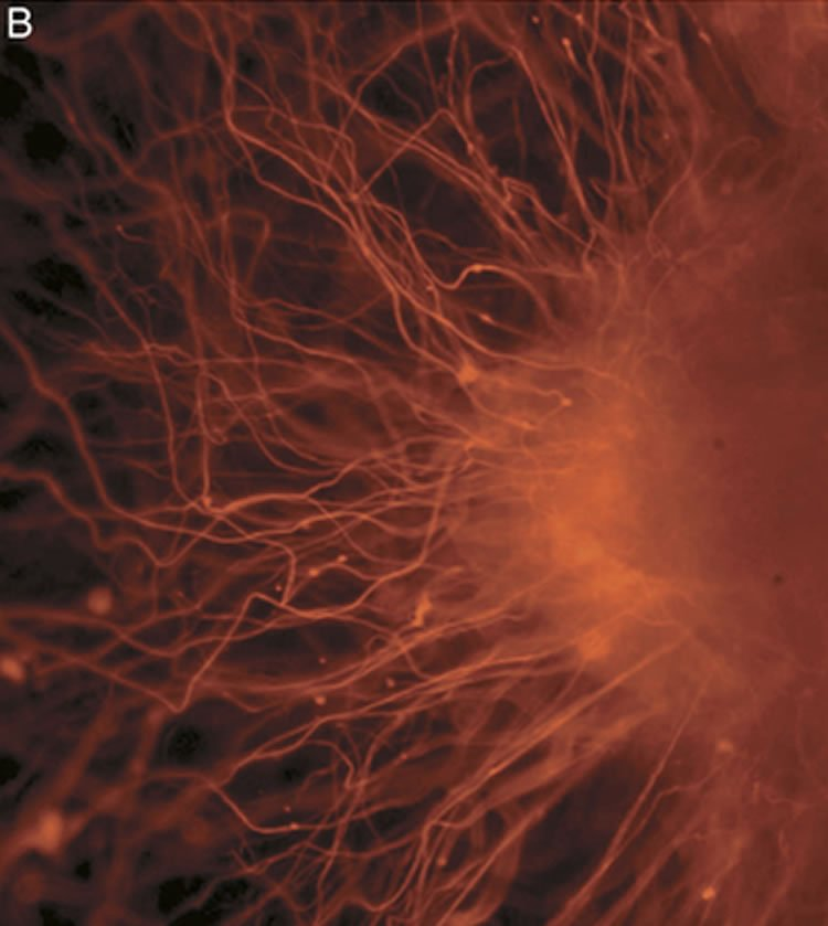 This shows Nerve cells, an example of a cell type after differentiation.