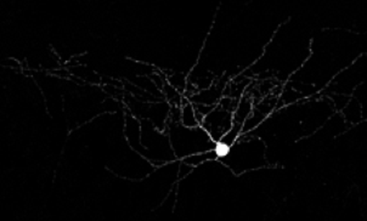 This is a fast spiking interneuron in the cerebral cortex of the mouse.